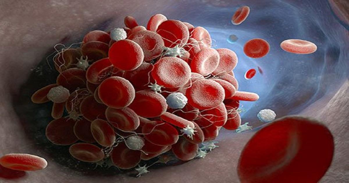 Blood Clots 1